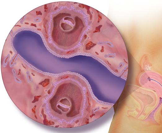 الأسبوع الرابع للتوأم داخل الرحم