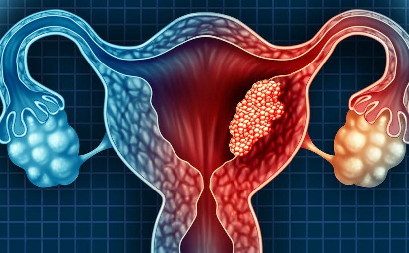 هل يمكن حدوث الحمل مع وجود التهاب في بطانة الرحم؟