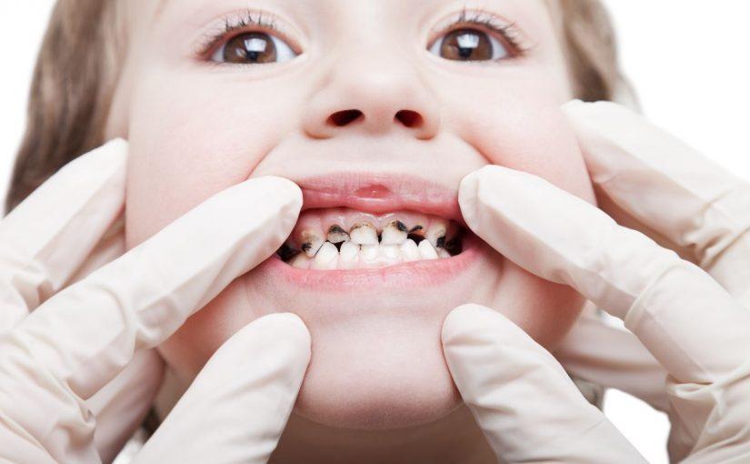 تسوس اسنان الاطفال: الاسباب والاعراض والوقاية