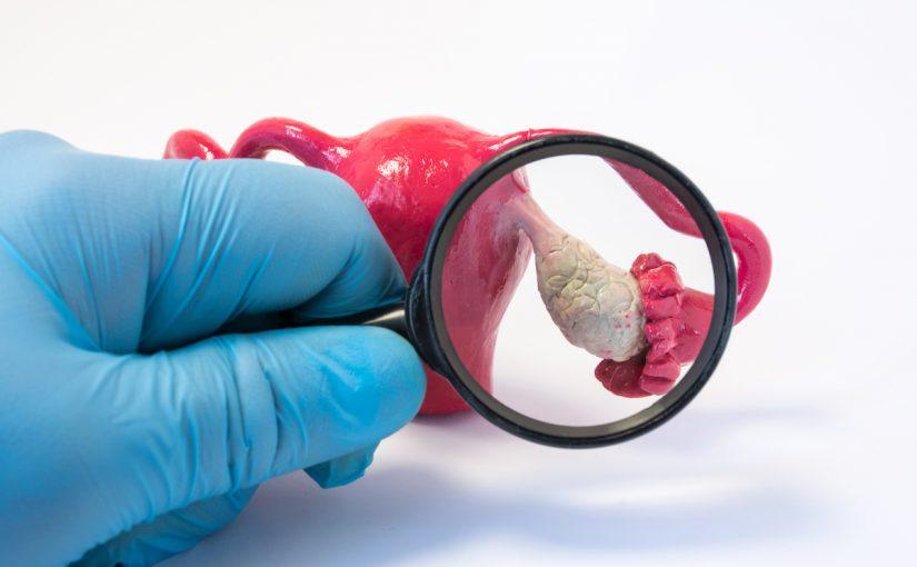 العلاقة بين تحليل مخزون المبيض وعلاجات الإخصاب