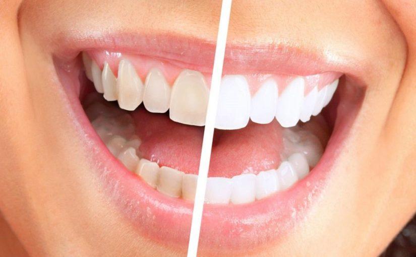ازالة جير الاسنان