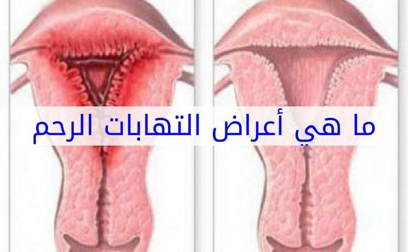 ما سبب التهابات الرحم وعلاجها