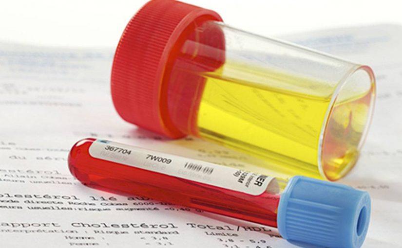 أسباب واعراض البيلة الدموية وعلاجها مجرب