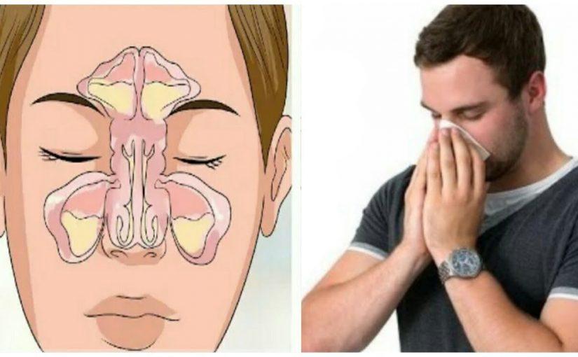 علاج حساسية الانف المزمنة بالاعشاب