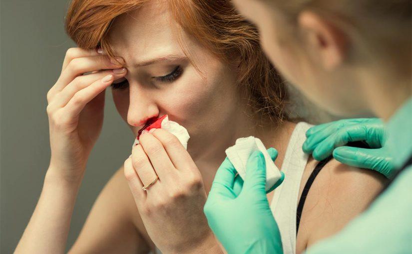 تفسير خروج الدم من الانف في المنام