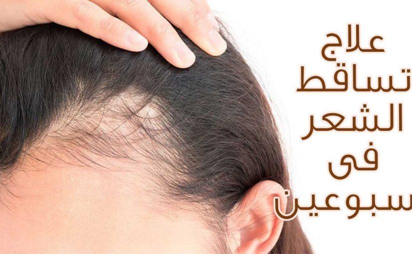 10 خلطات لعلاج تساقط الشعر