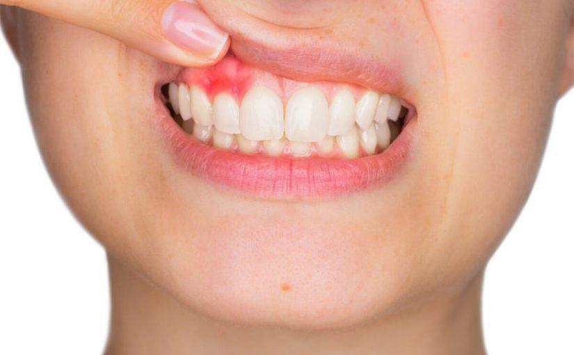 علاج خراج الأسنان بالاعشاب