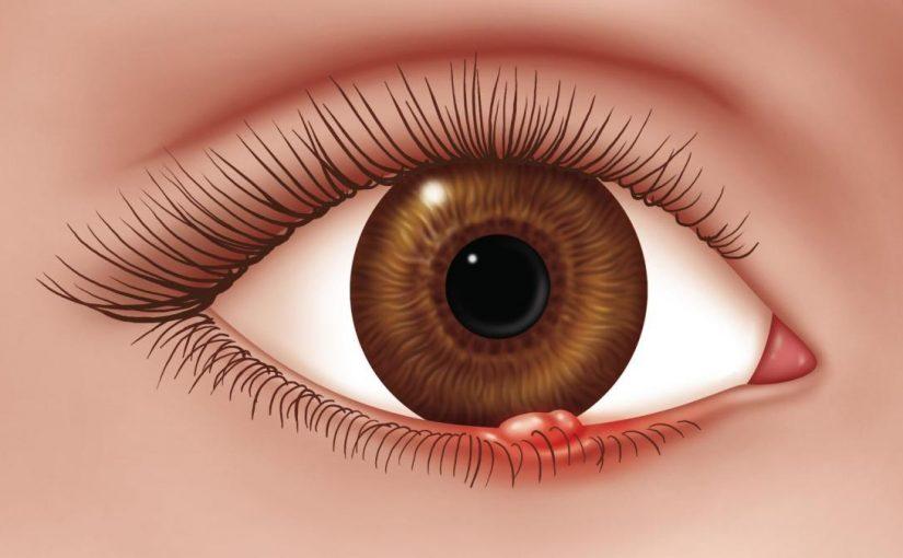 أسباب ظهور حبوب داخل جفن العين وعلاجها موسوعة