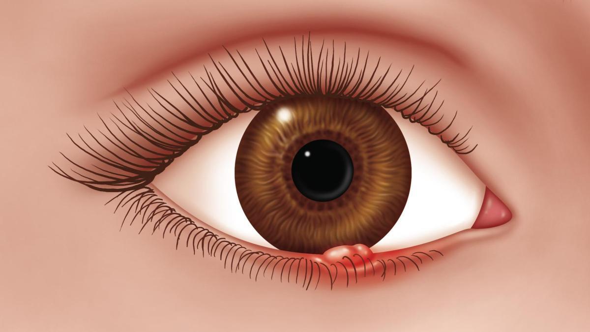 فك الموت تعليق مرض حبوب داخل العين Comertinsaat Com