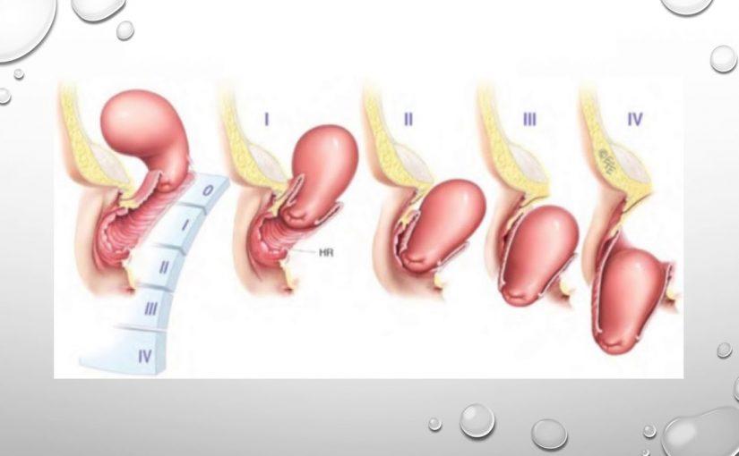 اسباب هبوط الرحم وعلاجه