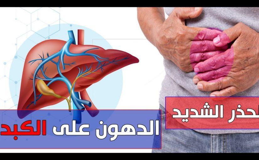 هل دهون الكبد مرض خطير