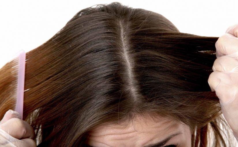 طرق التخلص من قشرة الرأس طبيعيا