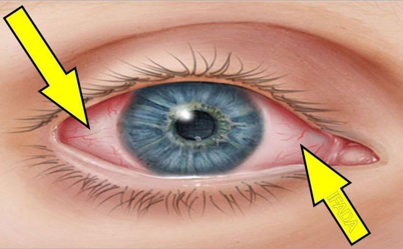 التهاب عصب العين الاعراض الاسباب والعلاج