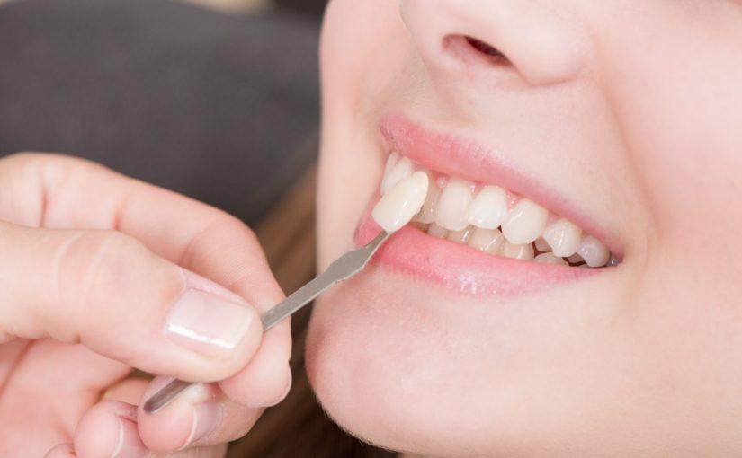 ما هو لومينير الأسنان