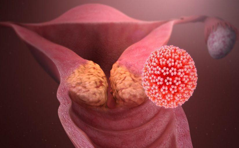 ما هو فيروس الحليمي البشري