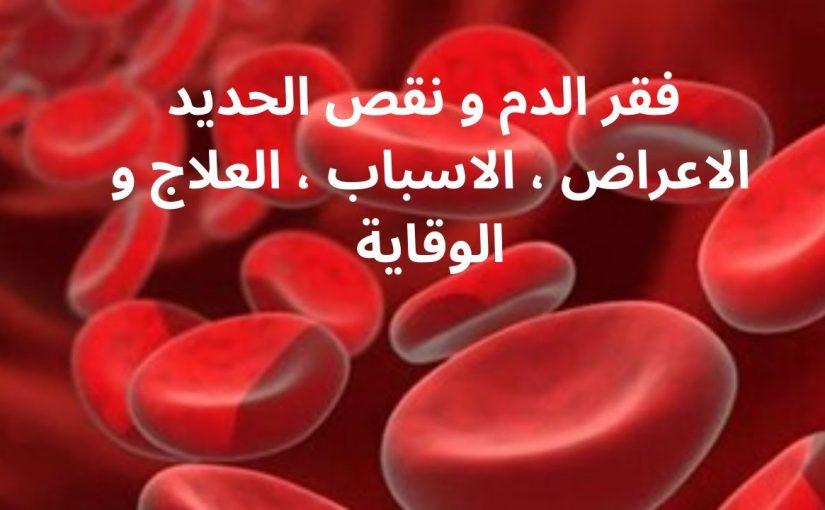 فقر الدم الحاد كم نسبته