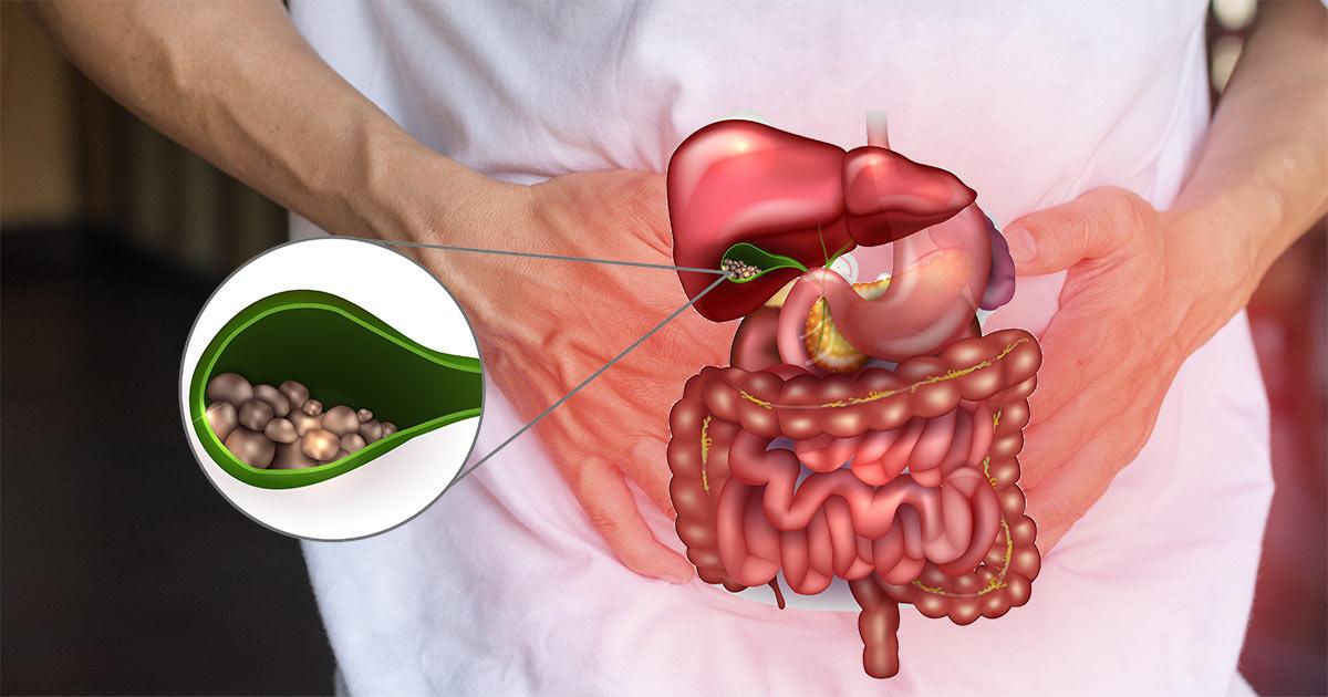 ما هو مرض التهاب المرارة