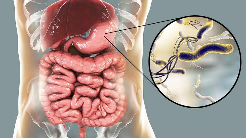 علاج بكتيريا المعدة