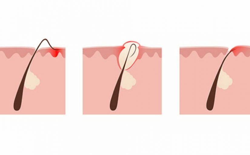 علاج شعر تحت الجلد
