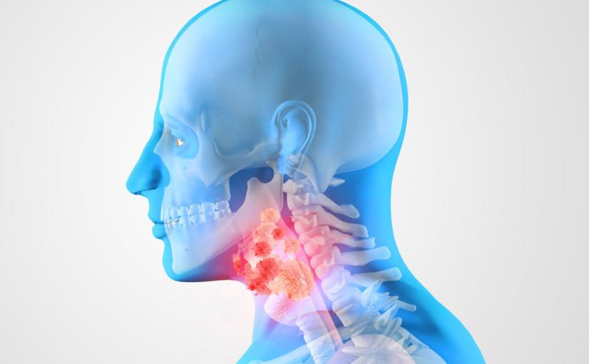 أعراض سرطان الحبال الصوتية