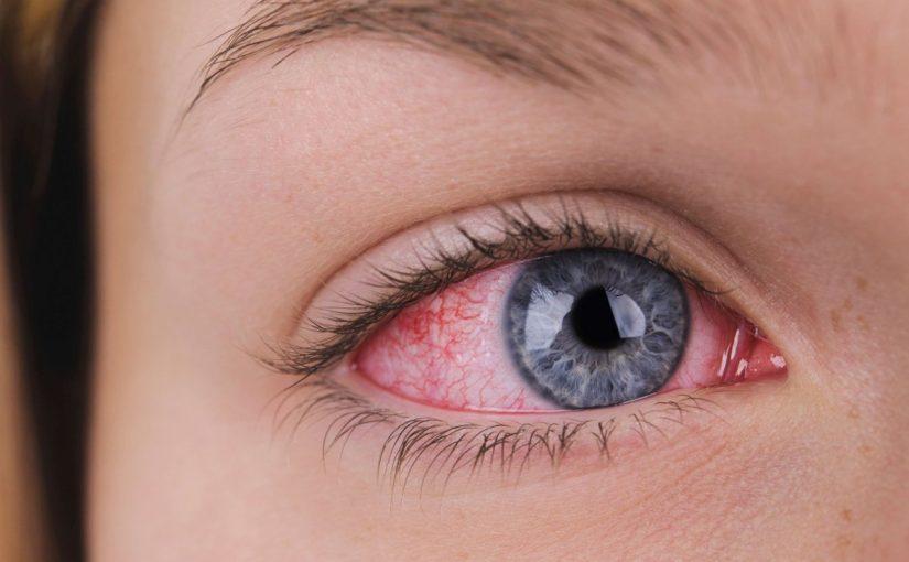 علاج رمد العين