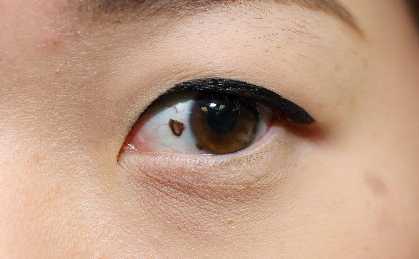 علاج ذبابة العين