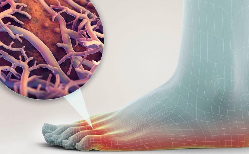 علاج ذبحة اصابع القدم