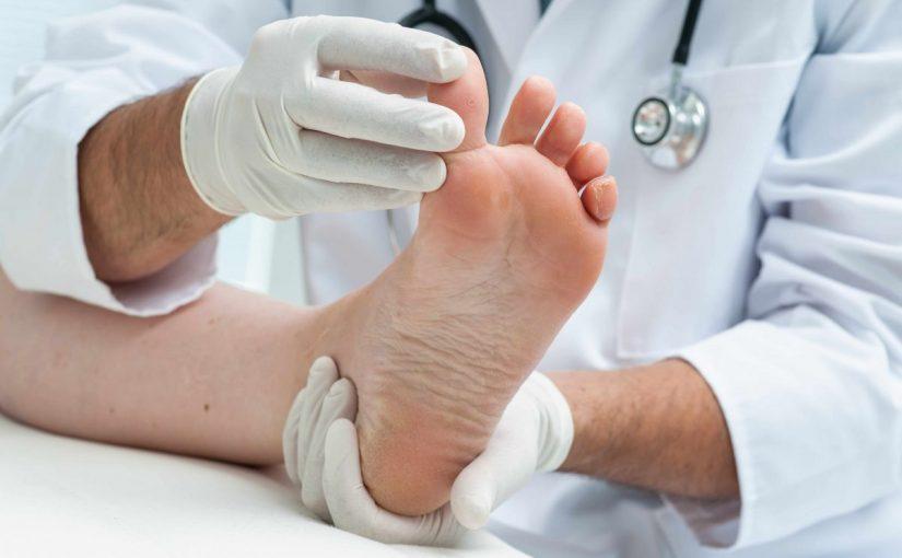 علاج ظفر القدم