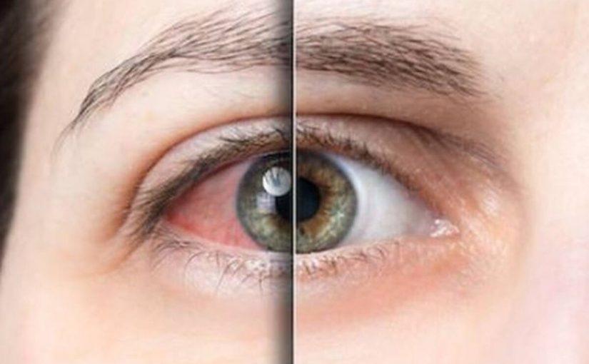 علاج ظفر العين