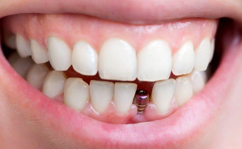 تفسير حلم سقوط الأسنان السفلى