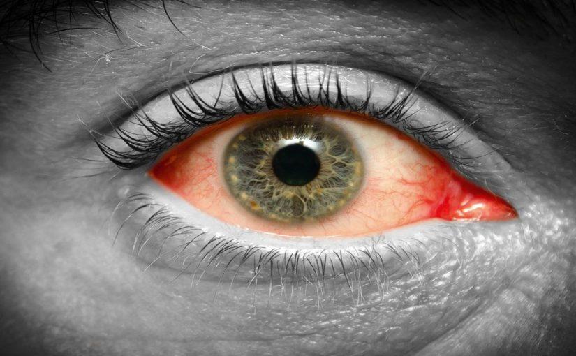 أعراض العين التراكمية