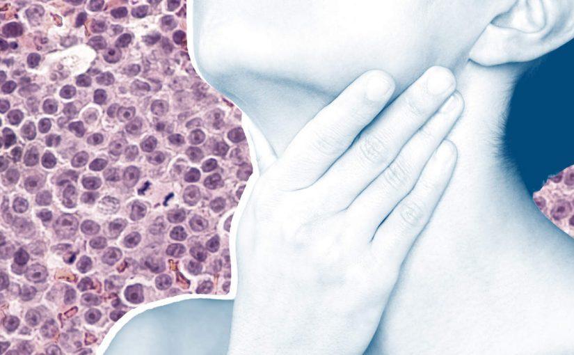 الفرق بين التهاب وسرطان الغدد الليمفاوية
