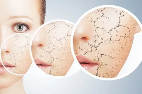 تجربتي مع علاج حساسية الوجه