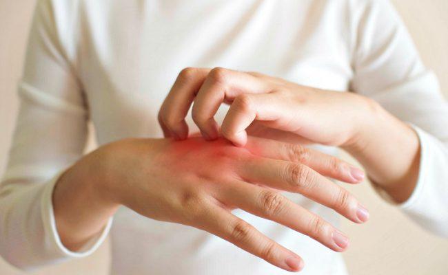 أسماء أدوية الحساسية الجلدية