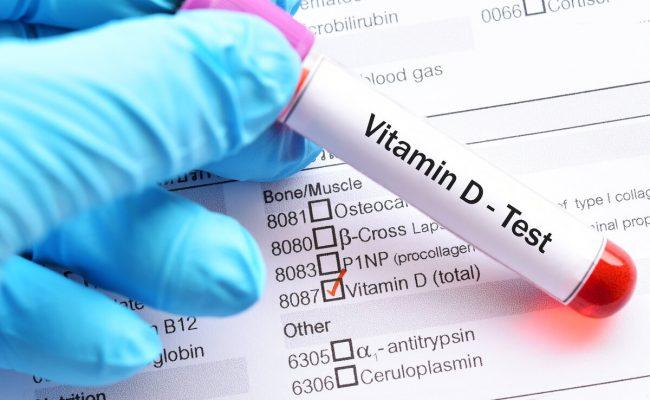 شروط تحليل فيتامين د