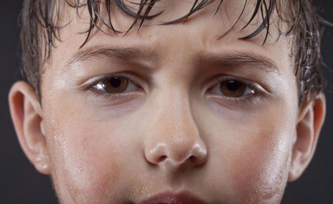 أسباب تعرق فروة الرأس عند الأطفال