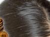 أسباب قشرة الشعر عند النساء وعلاجها