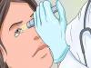 تجربتي مع علاج حول العين بالقرآن الكريم وطبيعياً