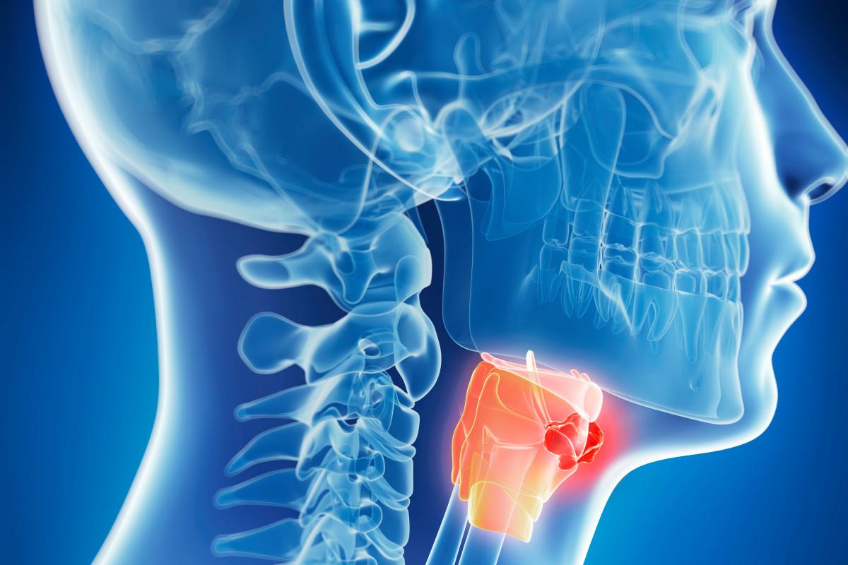 الفرق بين التهاب الحلق وسرطان الحلق